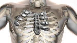 implante torácico